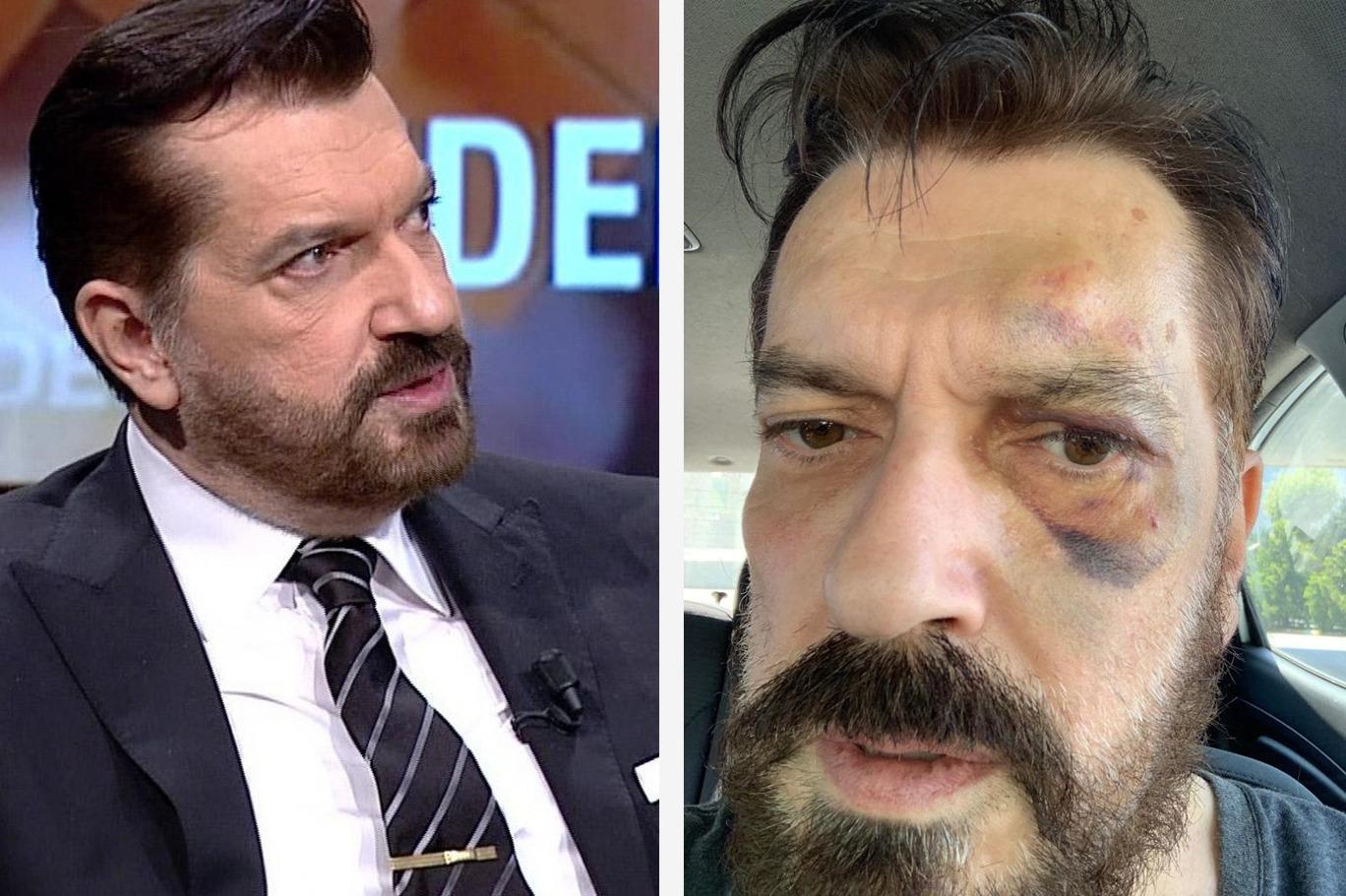 SONAR'ın sahibi Hakan Bayrakçı'ya saldırı ile ilgili görsel sonucu