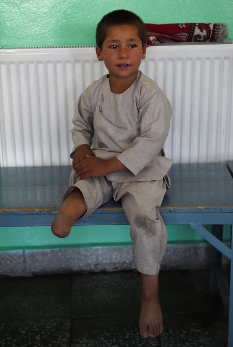 bacağına protez takılan Afgan çocuk