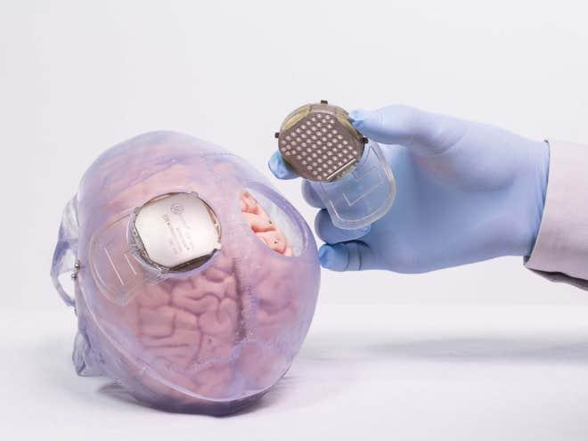 exoskeleton-implant-brain.jpg