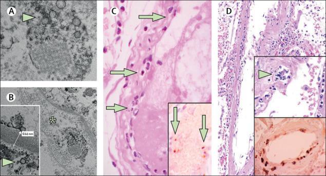endotel hücre disfonksiyonu.jpg