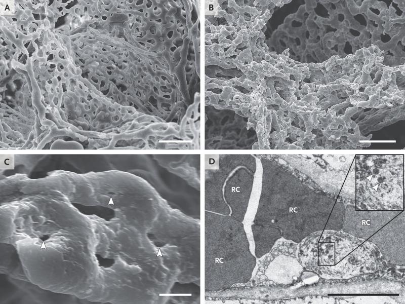 mikrovasküler değişiklikler.jpeg