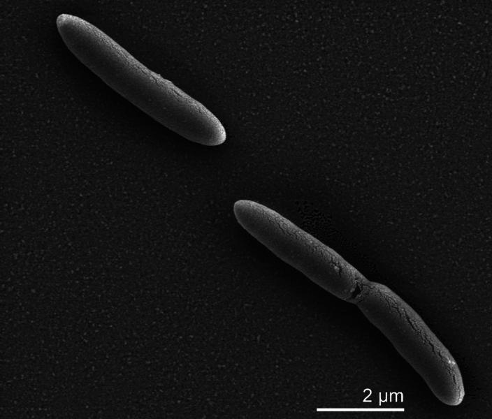704px-Desulfotomaculum_acetoxidans.png